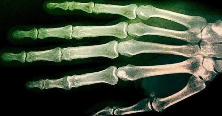 Examens osseux d'un mineur