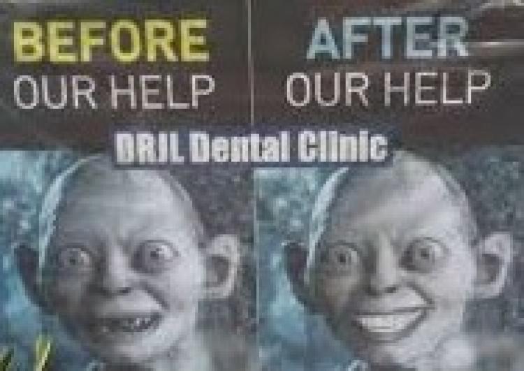 """Publicité """"avant"""" et """"après"""" pour des soins dentaires."""